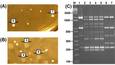 Detection of Lactobacillus salivarius CUL61 and Lactobacillus acidophilus CUL21 in faecal samples of a healthy volunteer