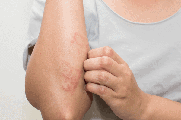 What is eczema? Symptoms and causes explained - ProVen Probiotics