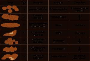 The Bristol Stool Chart - ProVen Probiotics